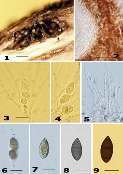 diversity of fungal endophytes in cymbopogon caesius Activity of fungal endophyte communities associated with plants of brazilian  fungal diversity 28(1): 1-13  rapd and issr markers in assessment of molecular.